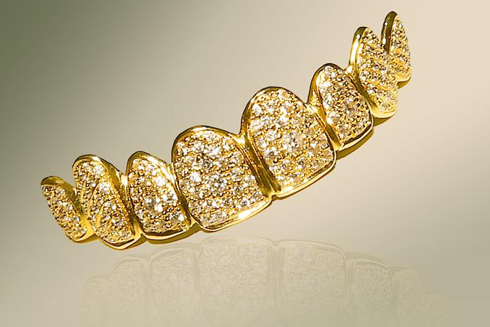 La Dentadura más cara del mundo está hecha de Oro y Diamantes
